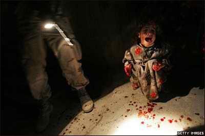 کودک زخمی عراقی